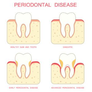 salmon creek periodontal
