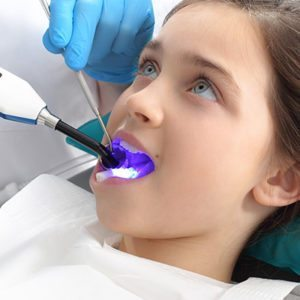dental sealants salmon creek