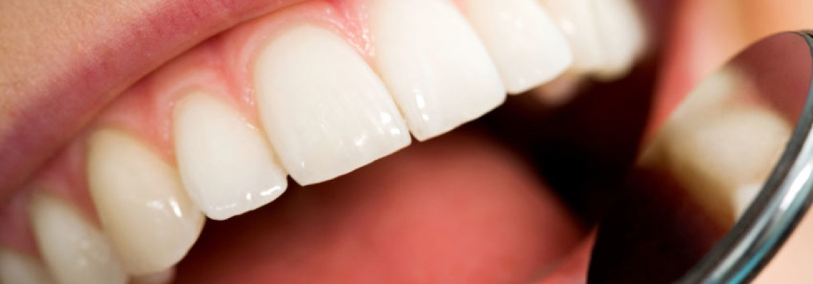 Teeth Whitening Basics